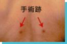 手術跡 通常、この手術のためだけに、長く入院する必要はありません。