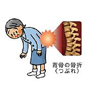 背骨の骨折(つぶれ)